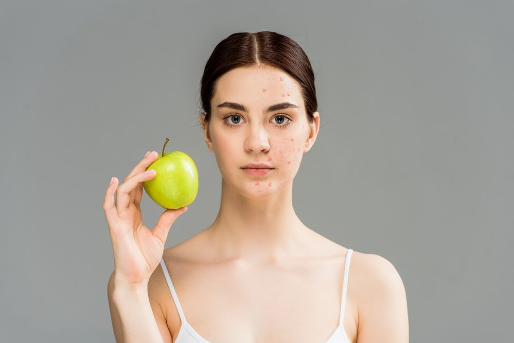 diet plan for acne