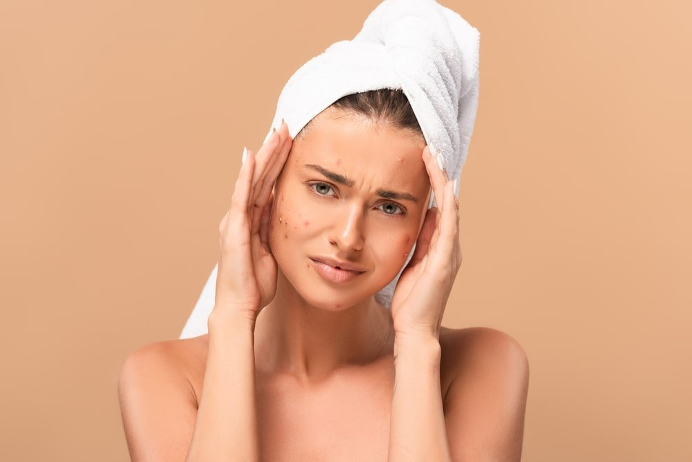 causes of acne