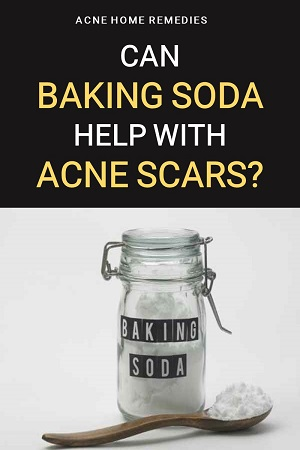 can baking soda be used for treating acne scars